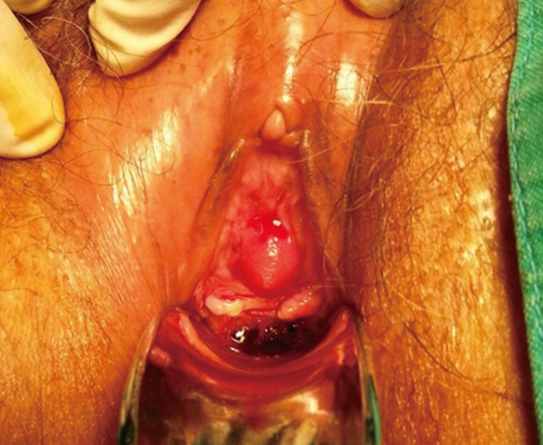 Anterior Urethrectomy For Primary Carcinoma Of The Female Urethra